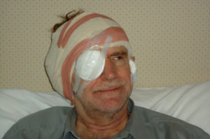 Robin Millar with a bandaged head and eye during his bionic retina treatment